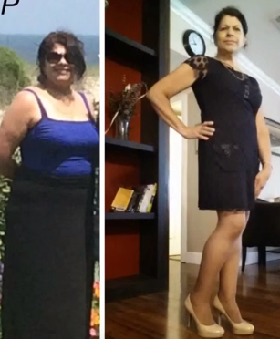 Clermont weight loss testimonial