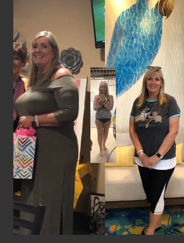 Weight Loss Orlando Testimonial
